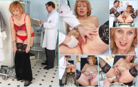 Download Kvetuse - 63 years woman gyno exam