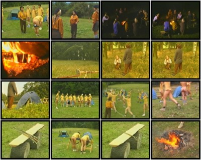 Lupus Pictures Videos, Part 1