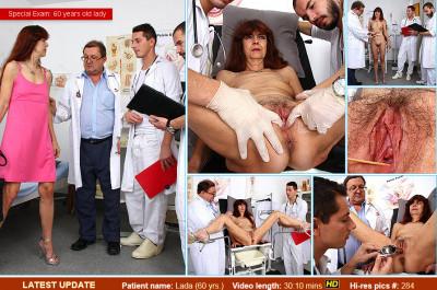 Lada (60 years old lady gyno exam)