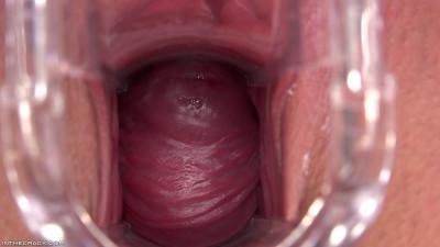 Outdoor Cervix