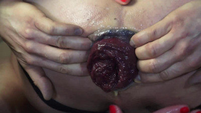 Huge prolapse my guy from anal sex
