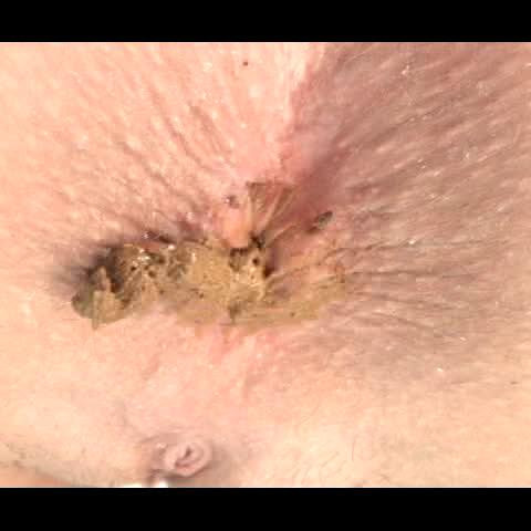 College Girls Pooping 12 Filesmonster Scat