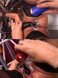 Hot Wax Directly On The Cervix