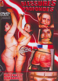 Extreme – Blessures Profondes