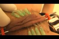 KC  - Needles Torture Part 1
