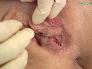 Miky Love (21 years girl gyno exam) 19 Jul 2017