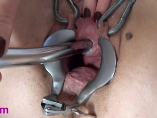 Vinam Extreme dildo cervix (2016)
