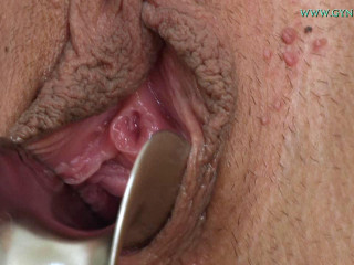 Routine inspection of the cervix