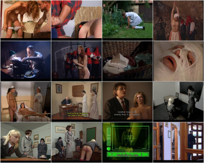Lupus Pictures Video Collection 3