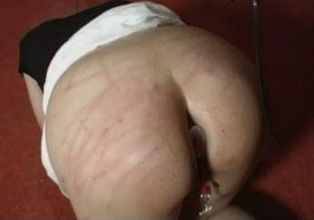 Acute Pain 4143