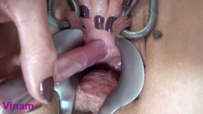 Description Vinam Extreme dildo cervix (2016)
