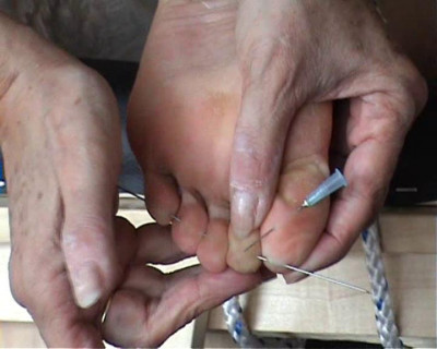 Amateur Foot Punishment and Needle Pain