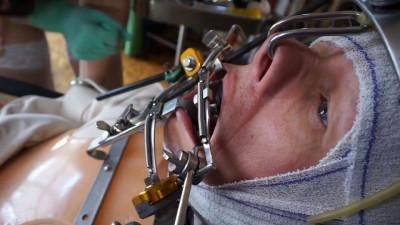 Strange Hobbies at the Dentist