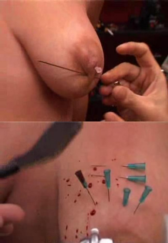 The test with needles