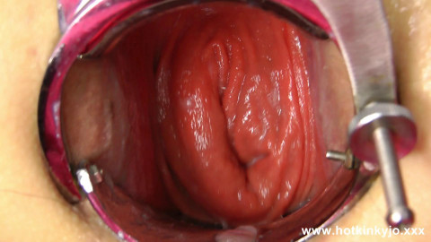 XO speculum and long big dildo anal fuck (2017)