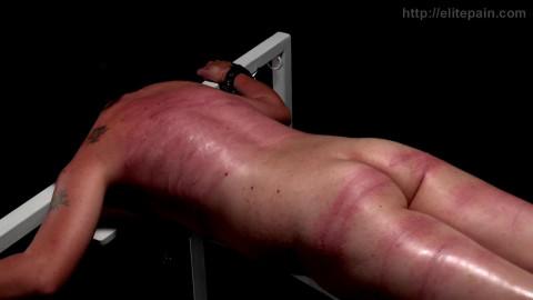 Dr. Lomp (Lomps Court Case # 4) Elite Pain