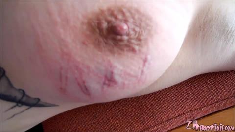 Bruising Pixies Tit