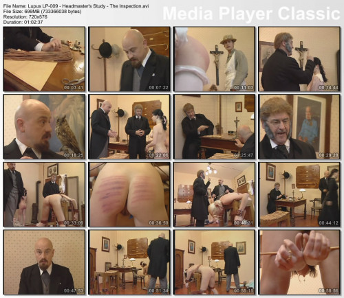 Lupus - 25 videos (Part 1)