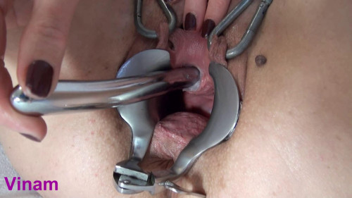 Vinam Extraordinary fuck stick cervix (2016)
